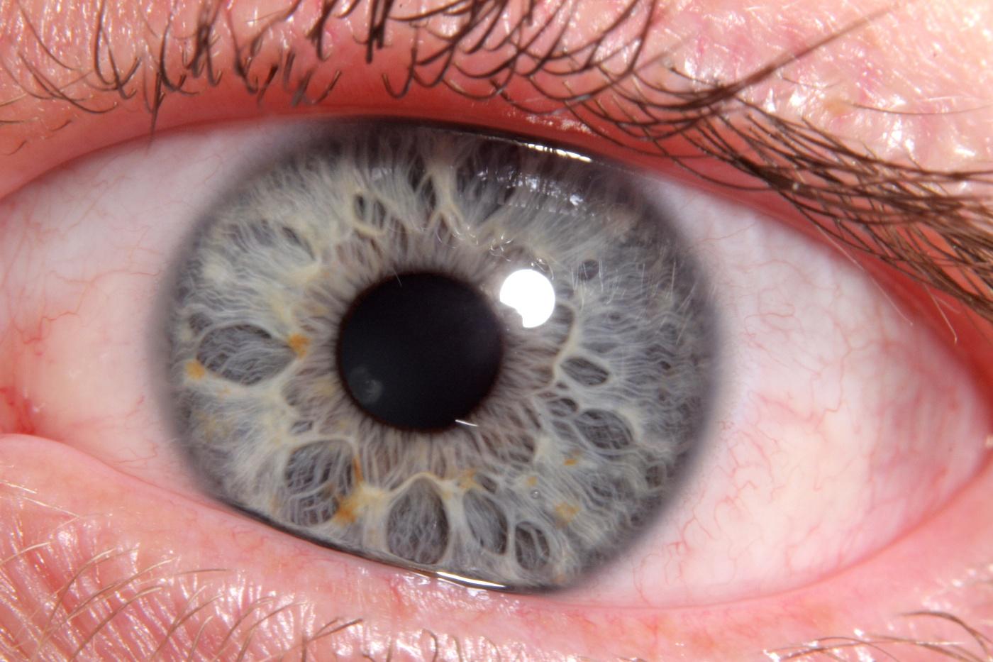 iridology 2